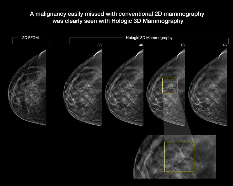 new tools improve mammography