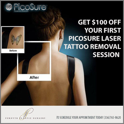 100 Off Tattoo Removal Coupon Journalnowcom