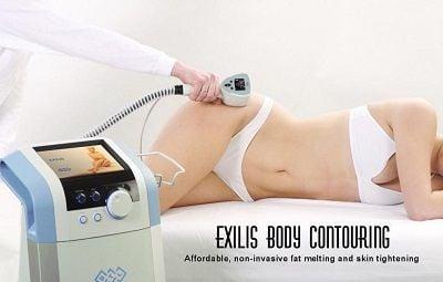 Exilis Body Contouring Treatment
