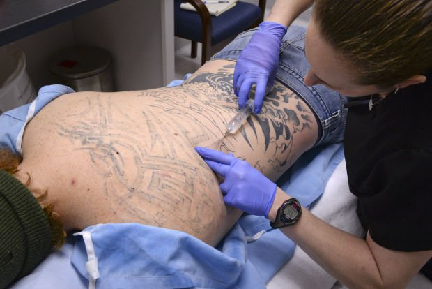 Man returns for second laser treatment to remove tattoo | Business ...