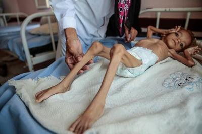 Aid chief: US naming Yemen rebels terrorists a famine threat