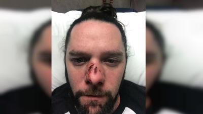 Racial slurs lead to vicious assault in downtown Spokane