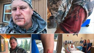 Hayden man shares story of Grizzly attack while bow hunting in Montana