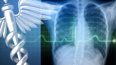 Testing urged for students exposed to tuberculosis case