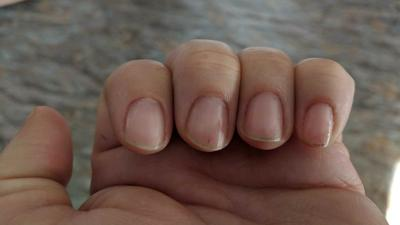 Ferry County man says wife's trip to nail salon ended with infection