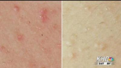 Avoiding heat rash this summer | News | khq com