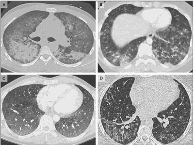 Chest scans of vape-related lung injury