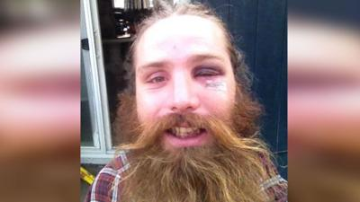 Coeur d'Alene man says he was sucker punched outside midtown bar