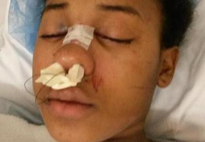 UPDATE: Glasses May Have Saved Teen In Drive-By Shooting: WARNING: Graphic Images