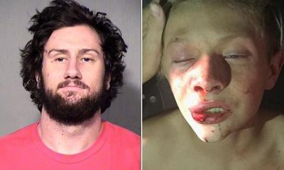 Man chases down, savagely beats 13-year-old boy for doorbell prank