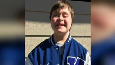 School makes special needs student take off letter jacket