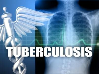 Spokane Co. Sees An Increase In Tuberculosis Cases
