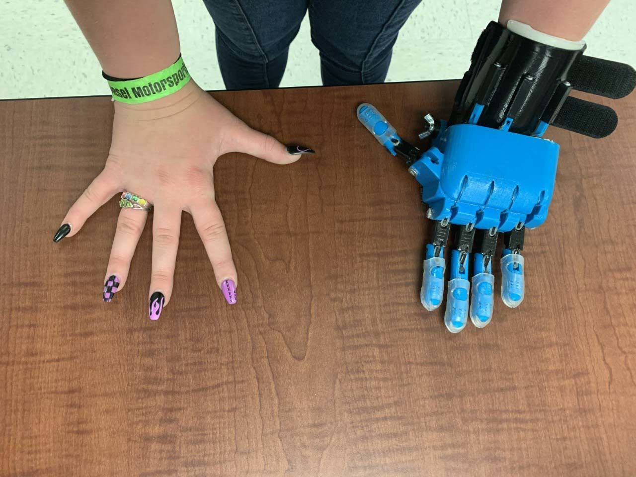 Helping Hands: Trine students design low-cost prosthetic limbs for teens