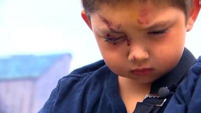 6 Year Old Boy Made Up Story Of Beating By Bullies Police Say
