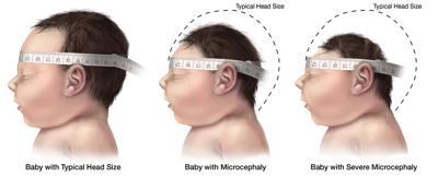 microcephaly zika birth defect