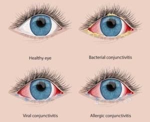 Pink Eye Viral Bacterial And Allergic Conjunctivitis Local