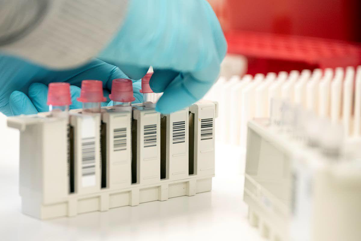 What does antibody testing tell you?