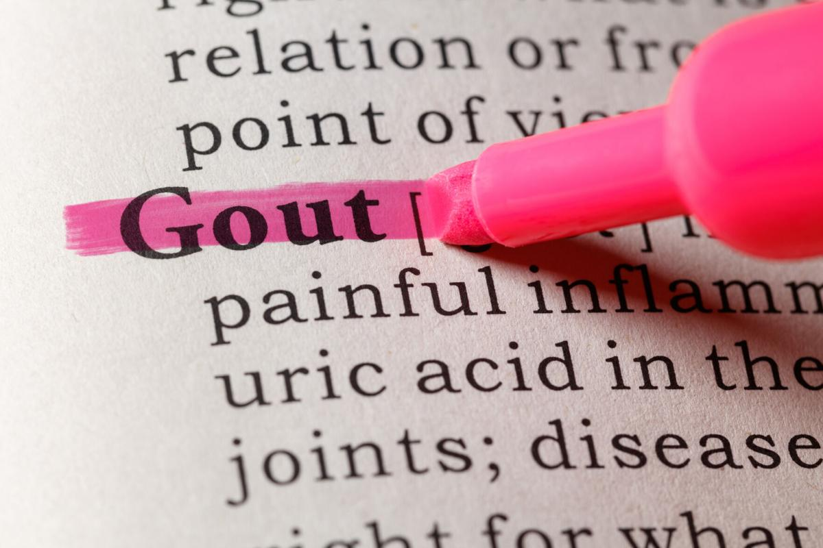 Study highlights best way to prevent gout