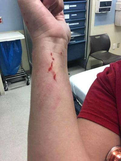 #EndNurseAbuse, two local nurses share their stories of recent abuse while on the job