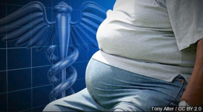 New study out on health concerns regarding obesity