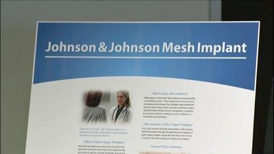 Washington state sues Johnson & Johnson over pelvic mesh