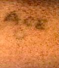Police hope sketch will ID tattooed victim