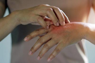HRII eczema