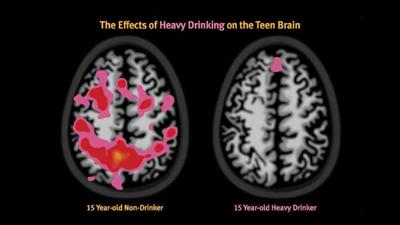 Alcohol Brain Damage >> Alcohol Causes Permanent Damage To Adolescent Brains News