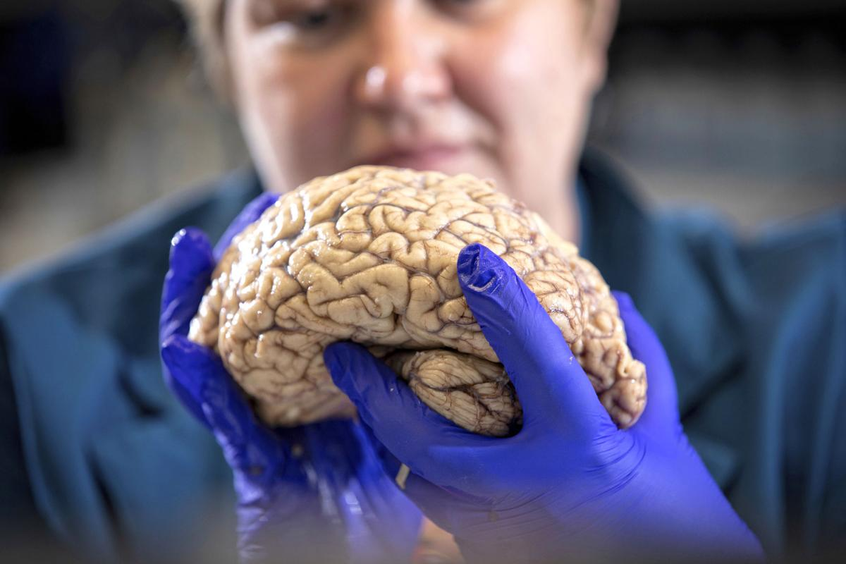 Rethinking Alzheimers