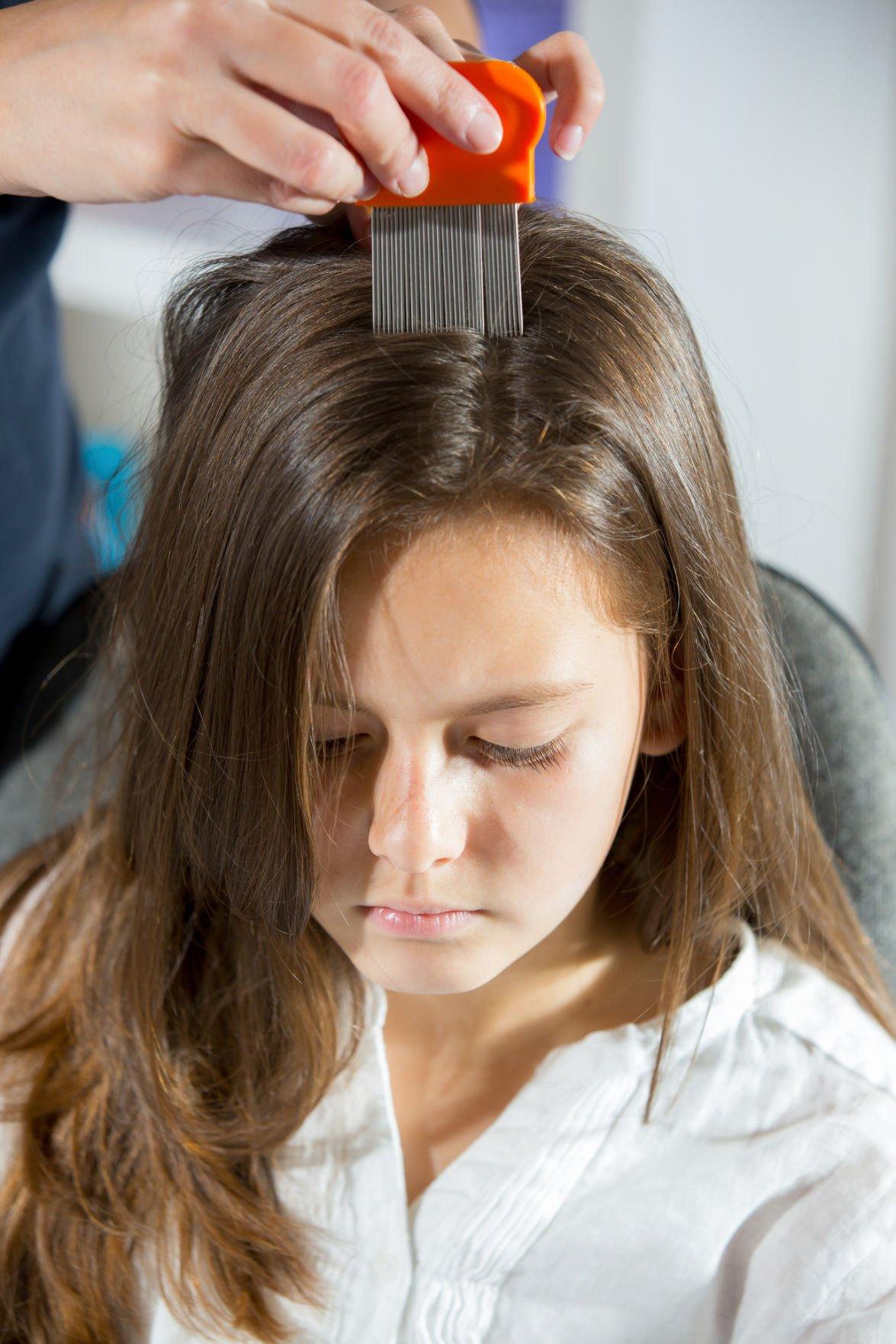 Lice Still Common Problem In Children Health Newspressnow