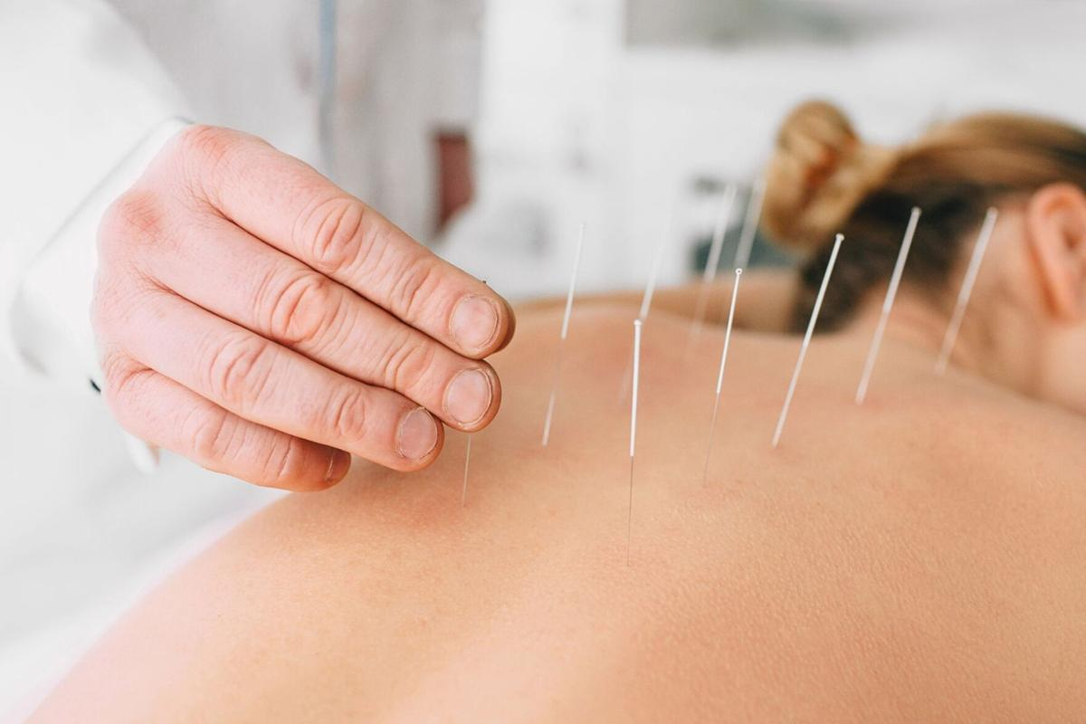 051421_ACUPUNCTURE_NP_PHOTO