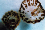 Sea lice: How to avoid them, and how to treat the stings