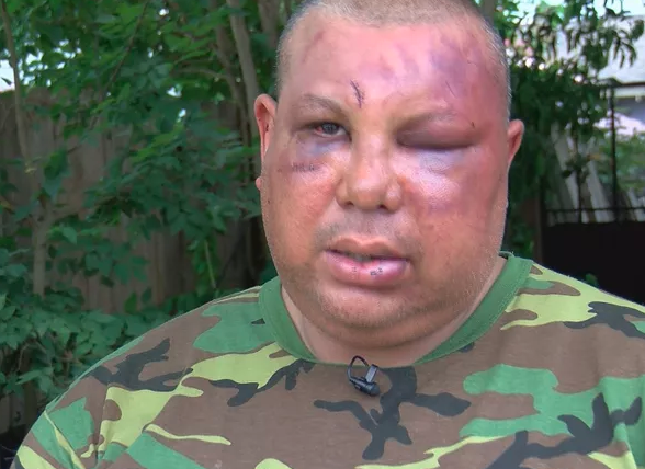 Man Beaten In Brawl With NOPD Officers Says He Was Called ...
