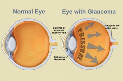 Glaucoma in the eye