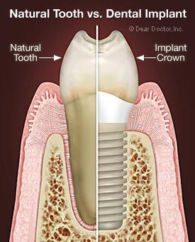 Remaley dental info