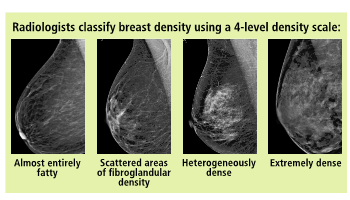 Your guide to understanding breast density | Sponsored