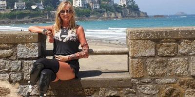 Mujer - amputaron brazo y piernas - Foto via Facebook - septiembre 16 2019
