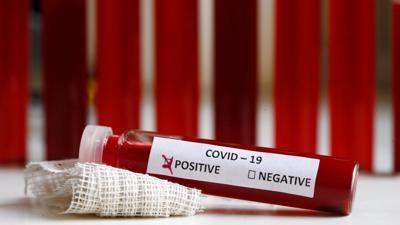 coronavirus, positivo.jpg