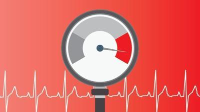 Hipertension - imagen ilustrativa - marzo 6 2020