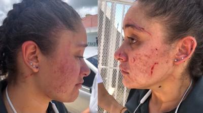 Joven - ataque de dos mujeres hacia ella - Captura de pantalla - agosto 6 2020