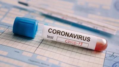 Coronavirus - covid-19 - prueba - noviembre 13 2020