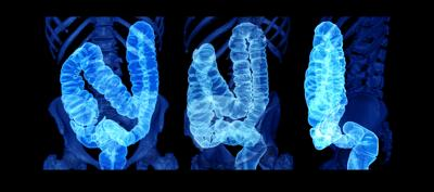 New law allows for earlier colorectal cancer screenings