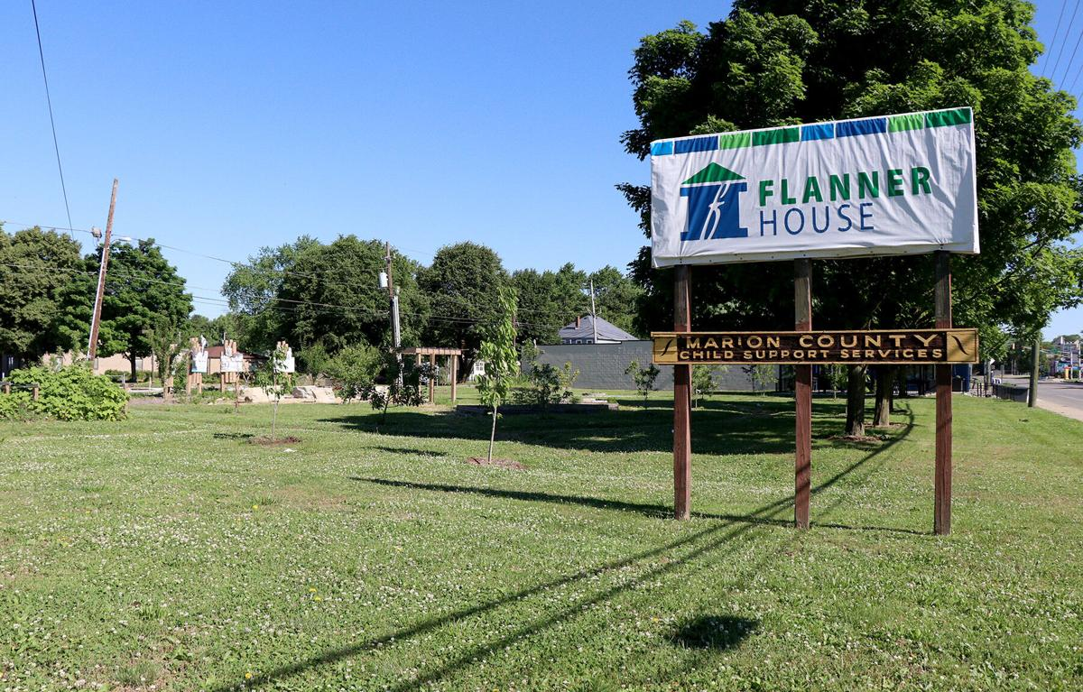 Flanner sign