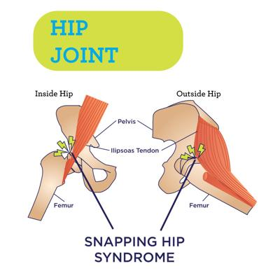 Snapping-Hip-Syndrome.jpg