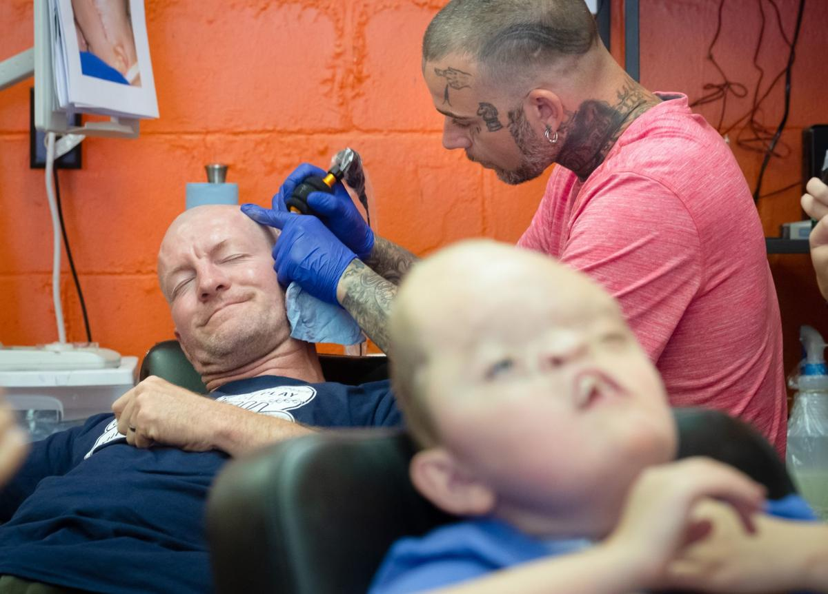 e1b72b7cf Doctors have to reshape his son's skull constantly. Now dad found a way to  share the pain