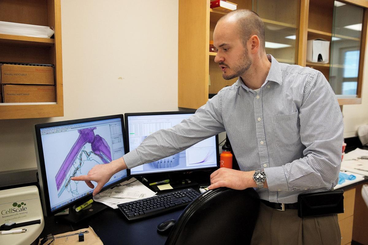 Why do leg stents fail so fast? UNMC has a $3 5 million