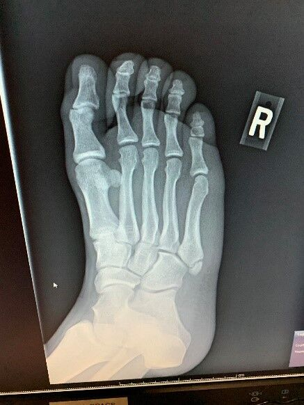 foot-radiography.jpg