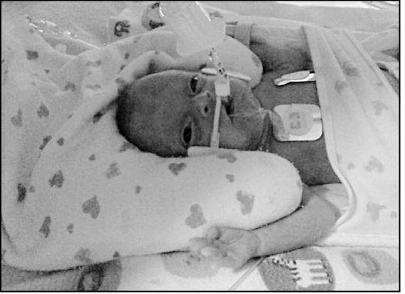 Baby born 18 weeks premature still alive and growing