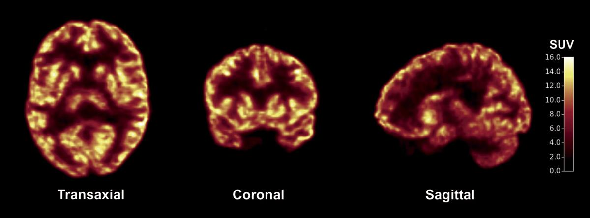 New way to detect how brain cells communicate