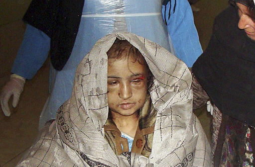 Tortured Afghan girl to go to India for treatment